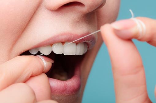 PERIO gums bleeding 858591060