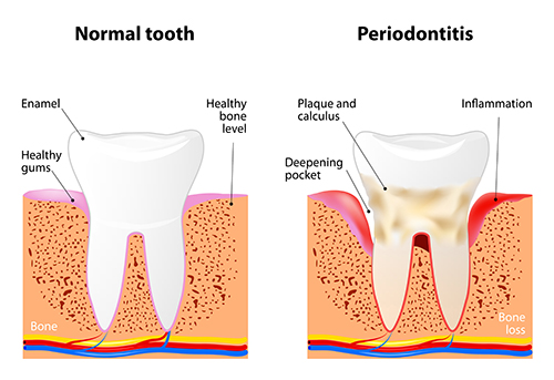 Diagram about the effects of Periodontis (gum disease).  Middle Creek Dental - Nampa, ID